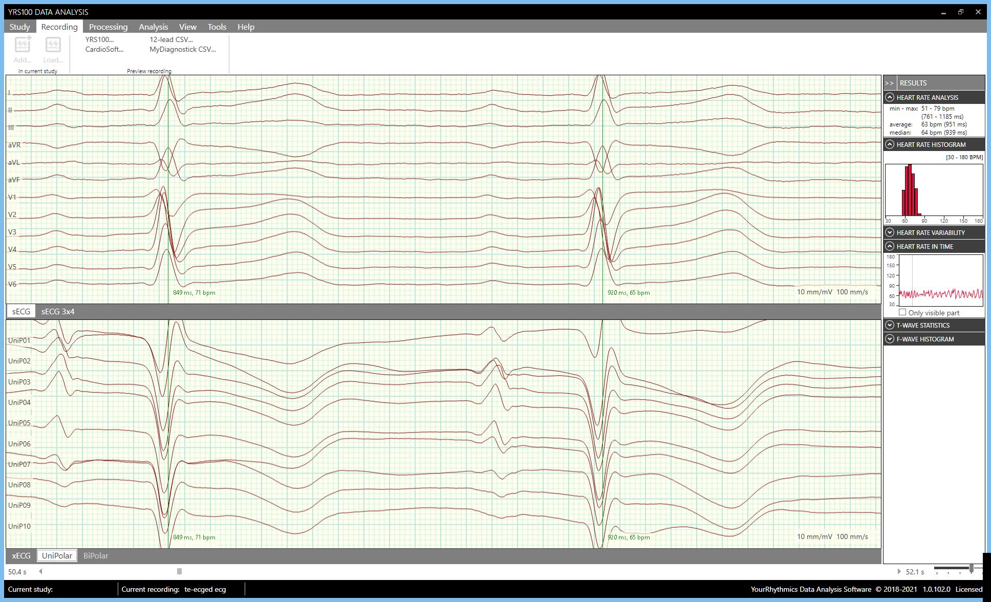 Analysis SW Sinus Rhythm patient[17]